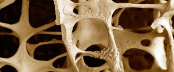 Conferència sobre l'osteoporosi