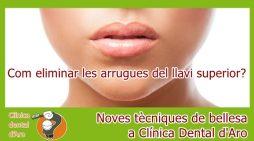Noves tècniques de bellesa a Clínica Dental d'Aro